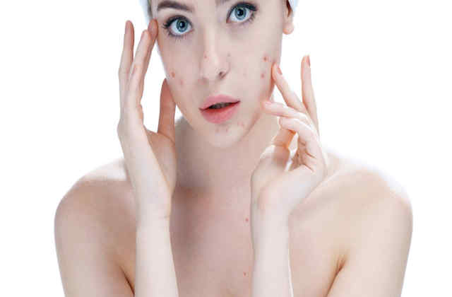 how to prevent pimples naturally at home