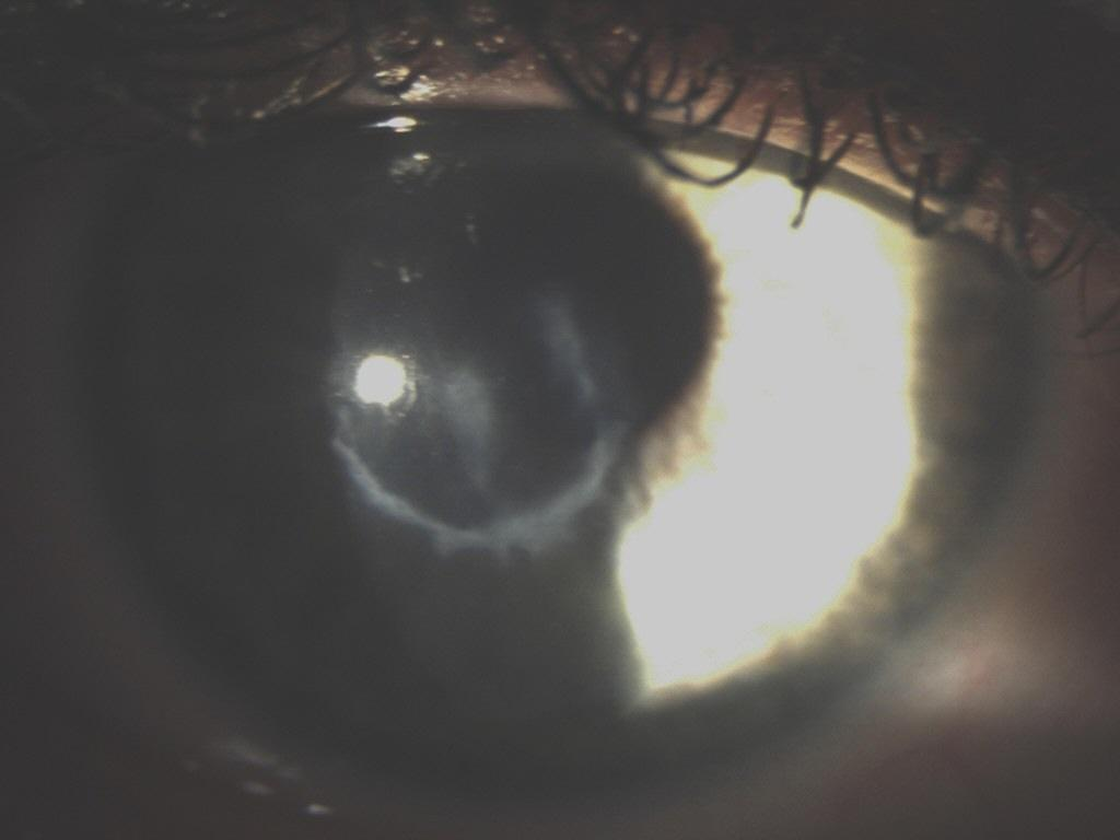 I have severe scarring on my corneas. Here is a picture of the scarring taken in 2014.  (Keratoconus Group Blog)