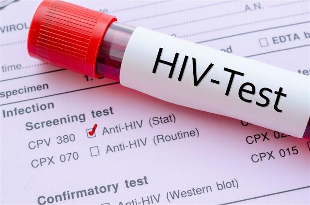 दिल की बीमारियों का खतरा दोगुना कर सकता है HIV Infection