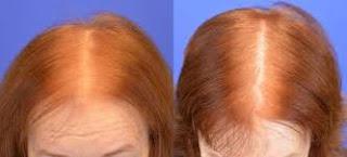 saç ekimi öncesi ve sonrası foto 22