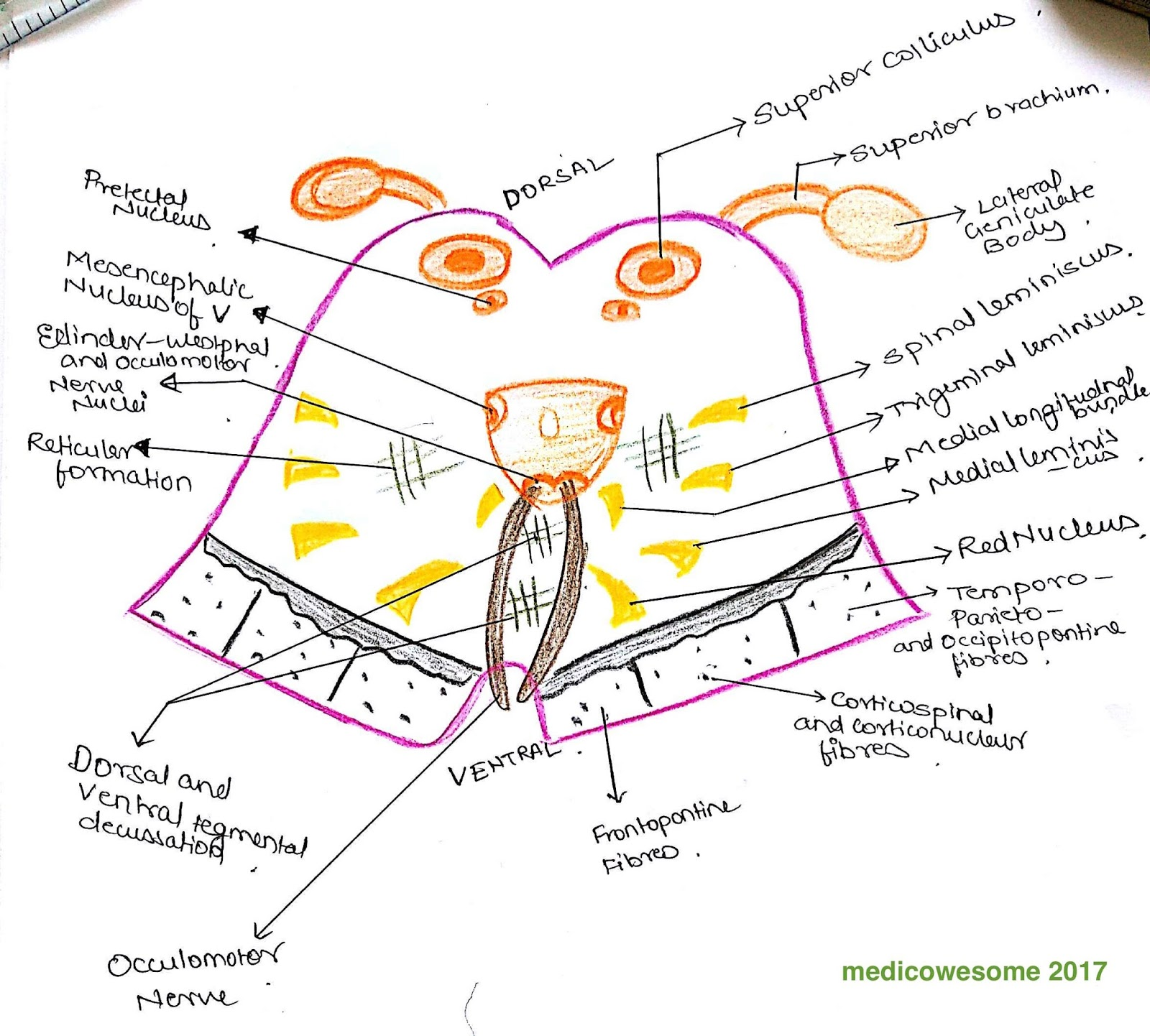Medicowesome How To Draw Midbrain Sections And Lesions