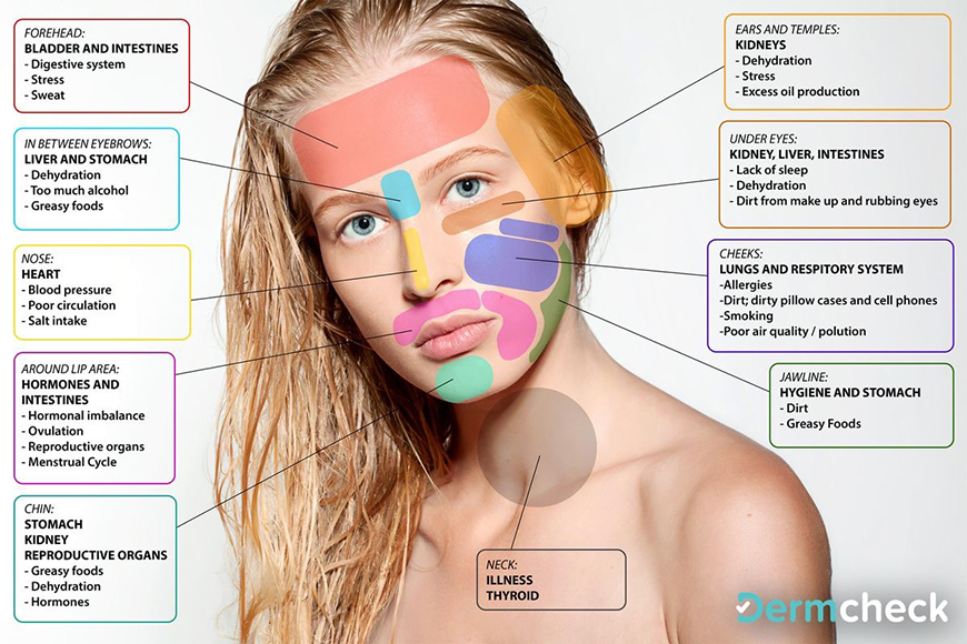 face mapping  what pimples on your skin tell about your