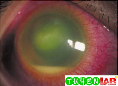 Hypopyon with severe anterior uveitis, showing layering of leukocytes and brinous debris in the anterior chamber
