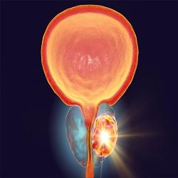 Braquiterapia: é a melhor opção para o câncer de próstata?