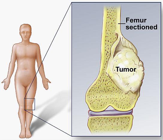 Obat Herbal Osteosarcoma