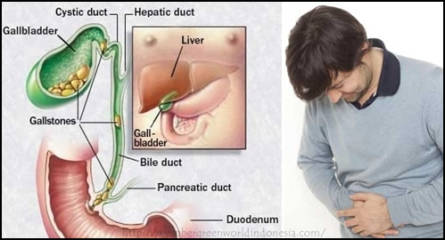 Apa Penyebab Dan Ciri-Ciri Infeksi Saluran Empedu