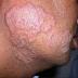 Pengertian Definisi Penyebab Dan Pengobatan serta Gejala Klinis Dermatomikosis Menurut Ilmu Kedokteran