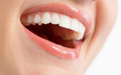 răng sứ sử dụng được bao lâu -7