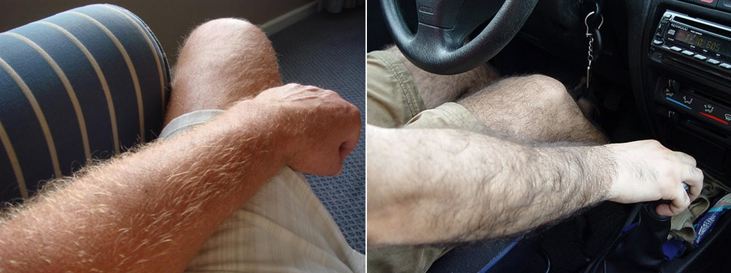Hairy Arms Man 32
