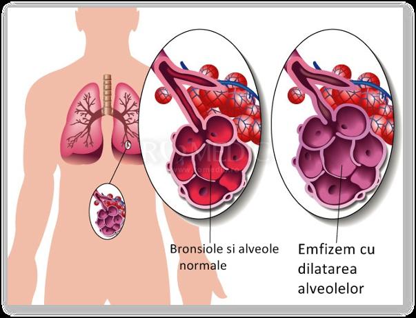 Ce este emfizemul pulmonar si cum puteti preveni boala