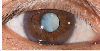 """هل نودّع جراحة المياه البيضاء؟! تمكّن علماء من اختراع قطرات للعين تذيب عتامة العين """" المياه البيضاء"""