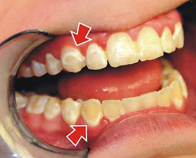 Răng ố vàng - nguyên nhân do đâu?