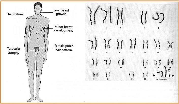 Biologi gonzaga soal mutasi kelas xii sma 7 seseorang yang berkariotipe 47 xxy atau 44axxy mengalami ccuart Choice Image