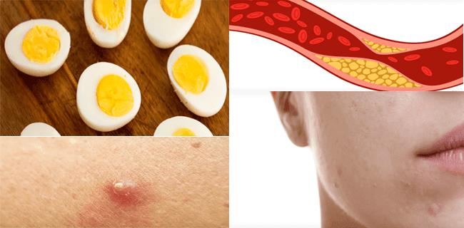 Kuning Telur, Jerawat, Bisul, Kolesterol dan sebagainya