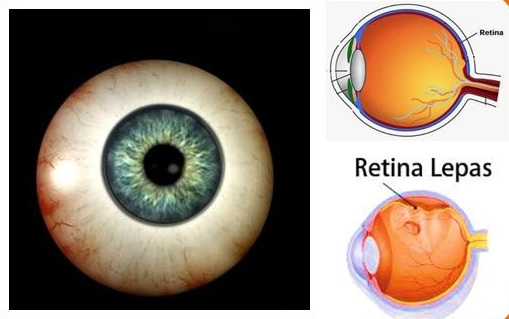 Obat Herbal Ablasio Retina (Retina Mata Lepas)
