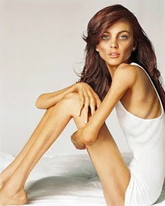 Anoreksia nedir?
