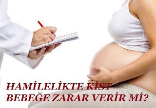 Hamilelikte Kist Bebeğe Zarar Verir mi?