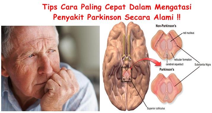 Obat Tradisional Tuntaskan Parkinson