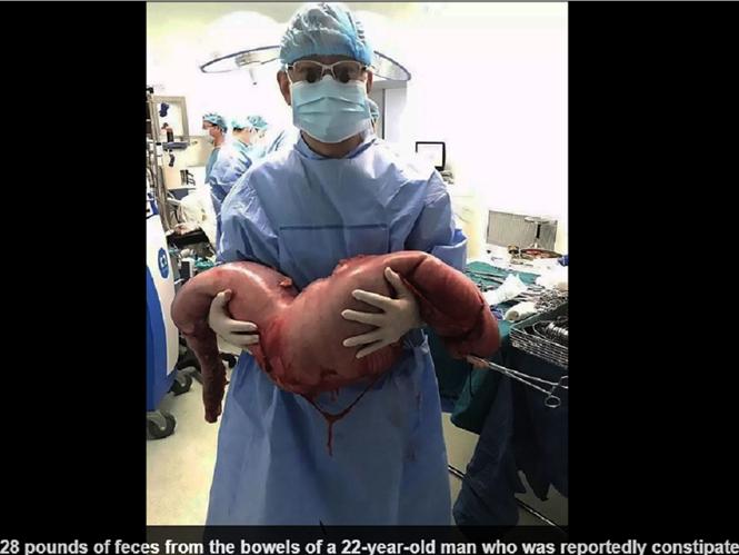 Bị táo bón chàng trai Trung Quốc phải mang hơn 12kg phân trong bụng
