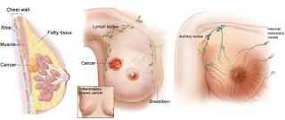 obat kanker payudara,