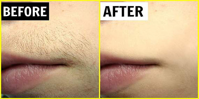 cheap and easy method to remove all unwanted hairs