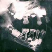 """<Imgsrc =""""ortopantomografía-5-años.jpg"""" width = """"350"""" height """"350"""" border = """"0"""" alt = """"Formación de los dientes a los cinco año>"""
