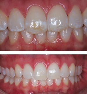 Damaged tooth & Normal tooth