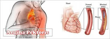 angina-pektoris,www.healthnote25.com