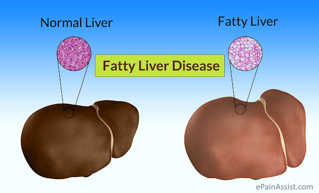 Liver Function Disorder: Know The Symptoms And Prevention Here