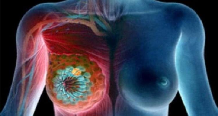 نشربه كل يوم ولا نعلم أنه يسبب سرطان الثدي.. إحذريه