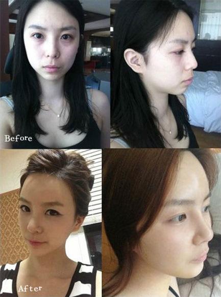 Wajah Orang Korea Tanpa Oplas