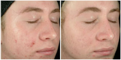 benzoyl peroxide for acne before and after photo 3