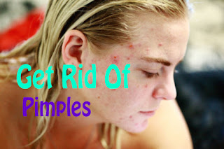 Top 10 effective home remedies to get rid of pimples - How to get rid of pimples