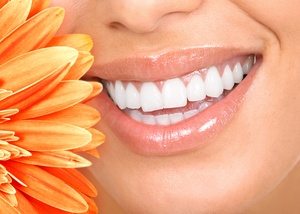 Woman smiling next to flower with teeth whitened by Hanson Dentistry in Independence, MO