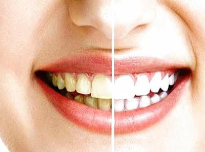 Asam jawa dan baking soda untuk memutihkan gigi secara alami
