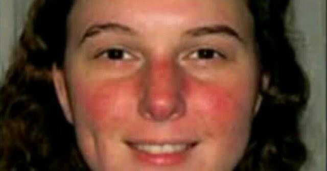 Cara mengatasi wajah kemerahan