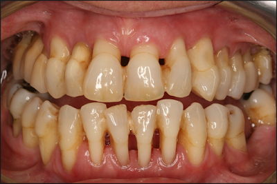 http://www.pusatmedik.org/2016/08/definisi-penyebab-dan-pengobatan-serta-gejala-klinis-penyakit-periodontitis-menurut-ilmu-kedokteran.html