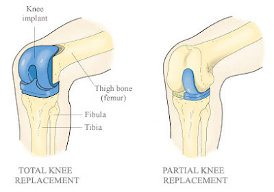 http://mahiclinic.com/total-knee-replacement-surgery/