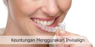 Cara Merapikan Gigi Gingsul / Berantakan Secara Alami Tanpa Kawat Gigi / Behel