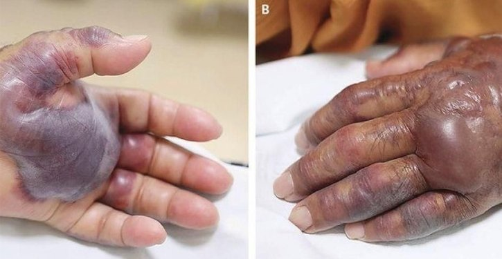 A Man Is Amputated From His Hand After Eating Sushi