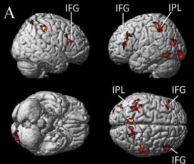 図:動作観察とミラーニューロンシステム