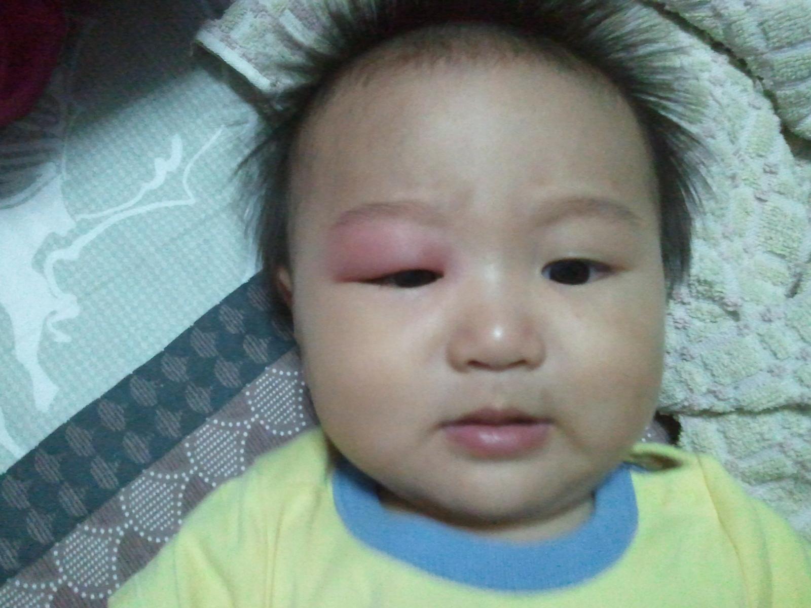 Bug Bites in Babies: Symptoms You Shouldn't Ignore - Flo