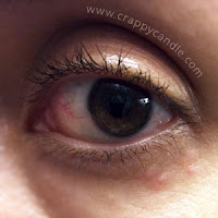 Hydrocortisone Triggered Lower Eyelid Perioccular Dermatitis :: CrappyCandle.com