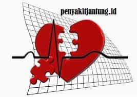 Cara Mencegah Penyakit Serangan Jantung Sejak Dini