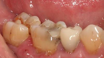 Makanan Dan Minuman Yang Dapat Merusak Gigi