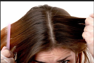 Cara Mengatasi Kutu Rambut dengan Cara Alami Mudah Dan Cepat