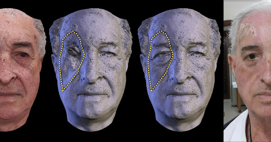 Low cost human face prosthesis with the aid of 3D printing