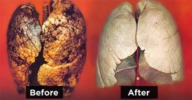 وصفة طبيعية لتنظيف الرئتين من السموم وخاصة للمدخنين