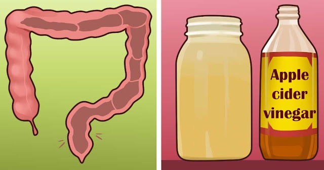Method of Detoxifying Using Apple Cider Vinegar and Honey