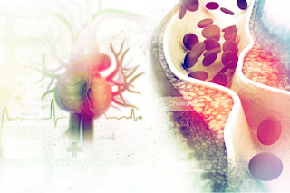 In the present world, heart diseases are the leading cause of death. Heat diseases can be because of various factors; high blood pressure, cholesterol increases, plaque formation in arteries, blood clotting that restricts blood flow. We can treat them with medications, but many studies show changing your lifestyle can more efficiently prevent heart diseases than any medications.